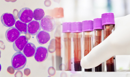 leukemia: Leukemia cells and scienctist testing in laboratory