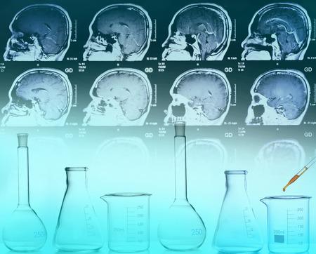 mri scan: medical concept : brain MRI scan and laboratory equipments