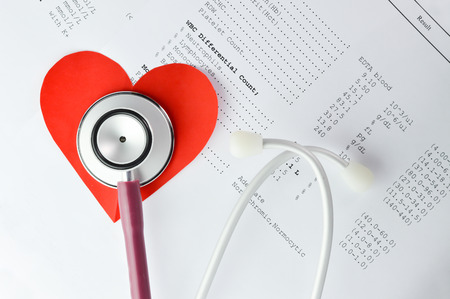 medical concept Stethoscope and red paper heart Stock Photo