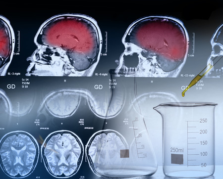 conept: medical conept : brain MRI scan and medical equipments