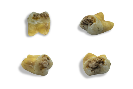 tooth with dental caries on white background