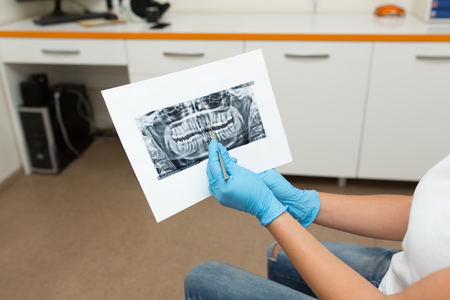 doctor dentist shows a client an x-ray picture of teeth.