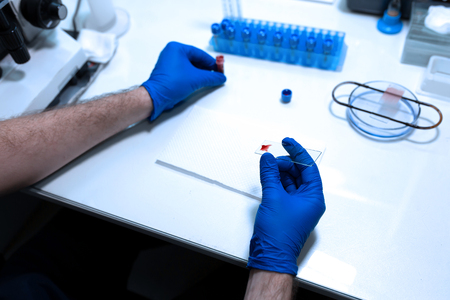scientist prepare blood sample for research on microscope. Placing blood sample on microscope slide. Science and medicine concept.