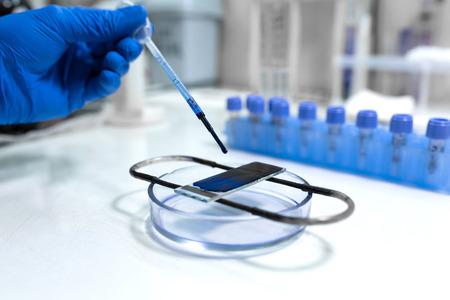 scientist prepare blood sample for research on microscope. Placing blood sample on microscope slide Standard-Bild - 122013588