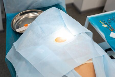 Mole removal operation. Close-up of the back of the patient is covered with a sterile cloth on the operating table. Place of operation sterilized.