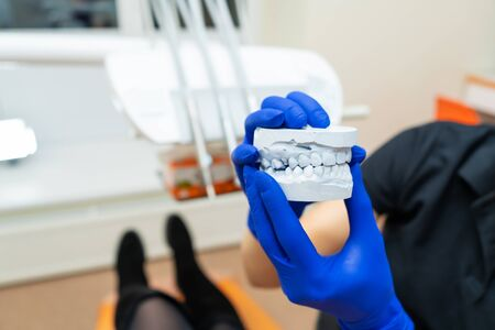 Beautiful girl professional doctor dentist orthodontist shows a plaster cast of the jaw.