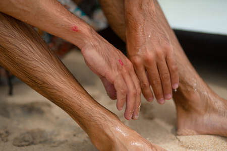 The guy got abrasions after an unsuccessful fall from the surf board. A wet guy on the shore examines an injured arm