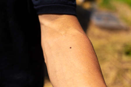 Ixodid bloodsucking tick on the hand. Reklamní fotografie