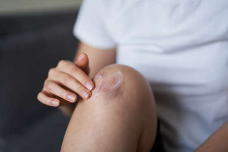 Close up of a person rubbing cream for healing injured knee joint. Bruise on the knee. Leg pain.