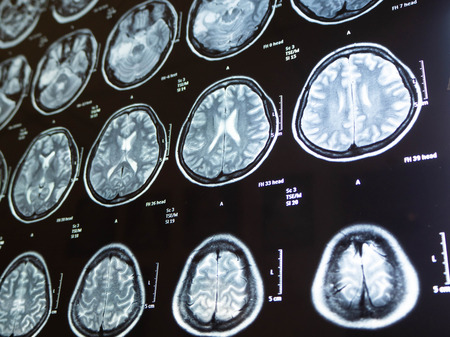 Film-Röntgen-Hirntumor meine Mutter, Bangkok, Thailand