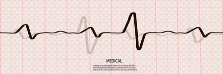 Cardiology concept with pulse rate diagram. Medical background with heart cardiogram Ilustração