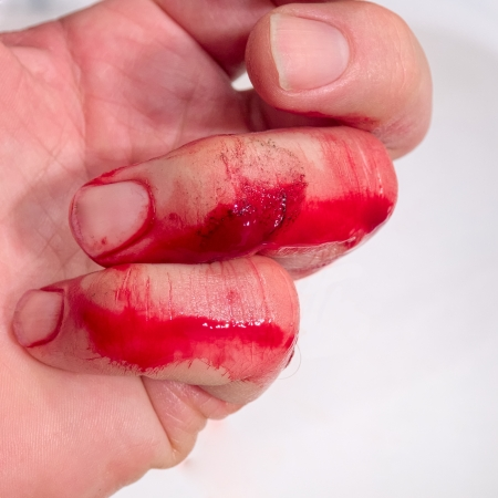 bleeding: It might be time to call a professional Stock Photo