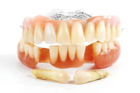 prosthetic equipment: false teeth prosthetic isolated on white background