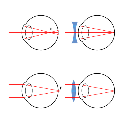 sclera: Illustration of how the structure of the eye optical system, visual defects and workarounds