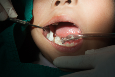 with fillings: Child dentistry, fillings, sterile gauze.