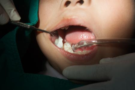 fillings: Child dentistry, fillings, sterile gauze.