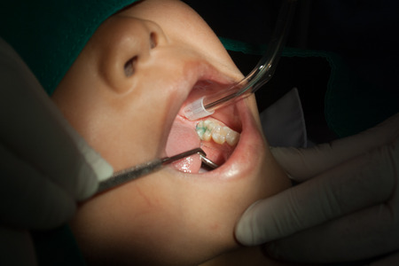 sealant: Dentists using the tool dental children, sealant.