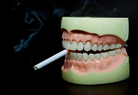 Close up. Model teeth on a black. The concept of cigarettes is a drug.