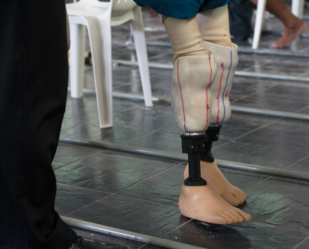 Disabled legs, walking with prosthetics