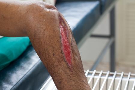 Deep cuts in men's legs.