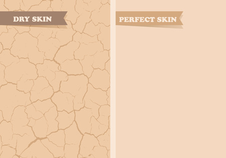 beautiful skin: Dry skin, Perfect skin Illustration