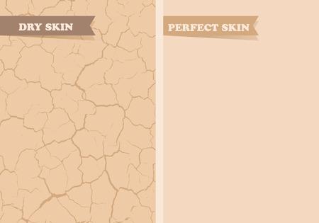 piel: La piel seca, piel perfecta Vectores