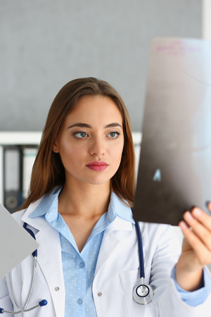Female beautiful doctor hold in hand and look at xray photography to detect problem. Bone disease exam, medic assistance, cancer aid, healthy lifestyle, ill test, hospital practice concept