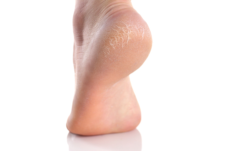 The heel of the foot with bad skin is covered with cracks Stock fotó