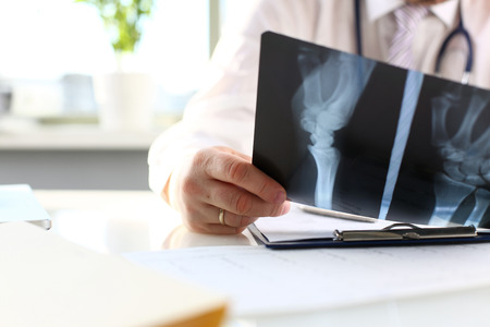 Male doctor hold in arm silver pen and look at xray