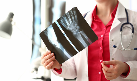 Woman Doctor Holding Right Hand Bone X-ray Image Stockfoto