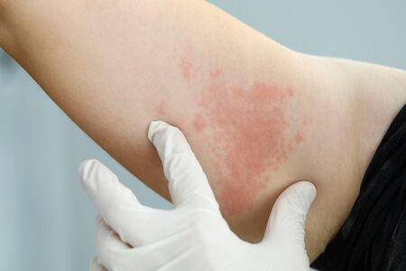 Concéntrese en la mano en el guante del médico profesional que mira la infección dermatológica dolorosa que se extiende por todo el cuerpo del paciente pobre que sufre. Concepto de anuncio de clínica de dermatología profesional Foto de archivo