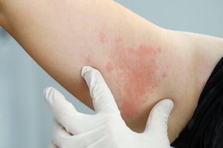 Konzentrieren Sie sich auf die Hand im Handschuh eines professionellen Arztes, der eine schmerzhafte dermatologische Infektion betrachtet, die sich im ganzen Körper des armen leidenden Patienten ausbreitet. Werbekonzept für professionelle Dermatologiekliniken Standard-Bild