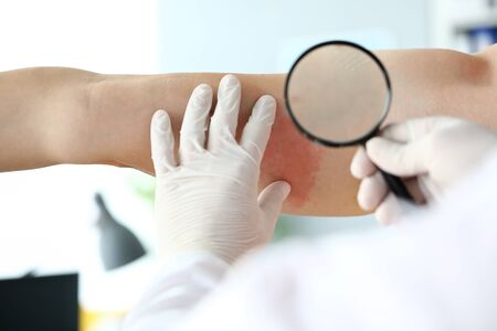 Focus on special dermatological magnifying glass used to inspect red rush spreading on bad skin of suffering patient. Dermatology clinic advertisement concept. Blurred background
