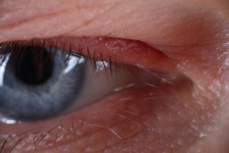 Close-up of persons open eye. Beautiful blue colour. Tiny wrinkles on mans skin and cute eyelashes. Middle-aged male face in macro shot. Youth and ageing concept