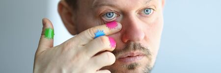 Man scratches his face with a dirty hand near his eye portrait. Virus infection concept Stock Photo