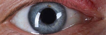 Sty on human eye closeup skin disease. Eyes treatment concept Stock Photo