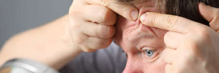 Close-up of middle-aged male person squeezing pimple on forehead looking in table mirror. Problematic facial skin with acne. Beauty hygiene and skin problem