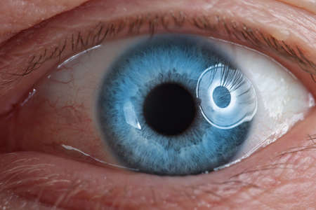 Human eye is blue. Examination of organ of vision in adults