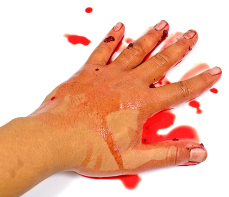 bloody hand isolated on white photo