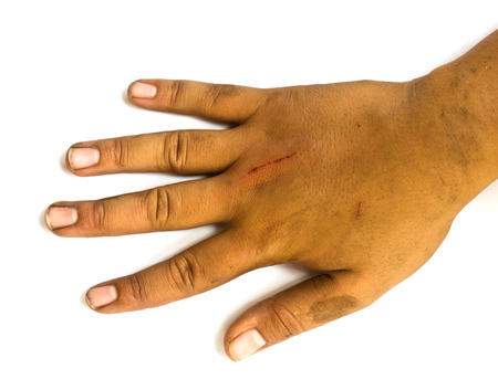 lesions: Dirty and lesions hand on white background Stock Photo