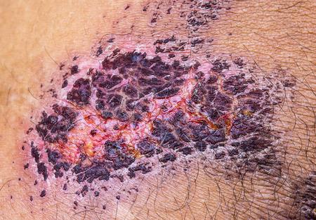 scab: medical incrustation scab skin of patient