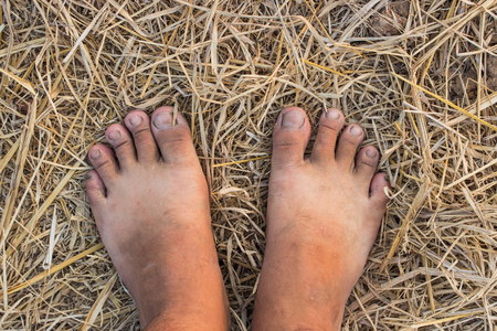 foot print: Barefoot on straw