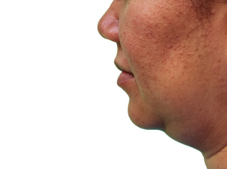Girl with oily skin and acne scars isolated on white background