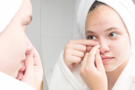 girl with a towel on her head in the morning in front of a mirror squeezes a pimple Stock Photo