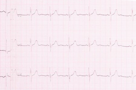 cardiogram result of the study of the heart top view, background closeup