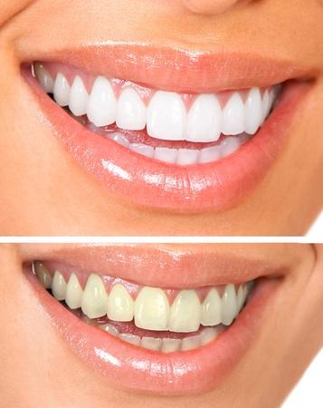 dientes sucios: Blanqueamiento. Atenci�n dental. dientes sanos mujer blanca.