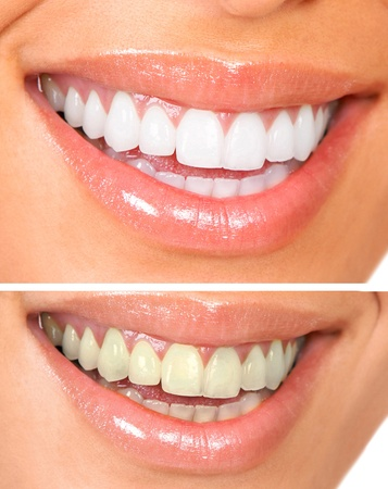 zuby: Whitening. Dental care. healthy woman white teeth.