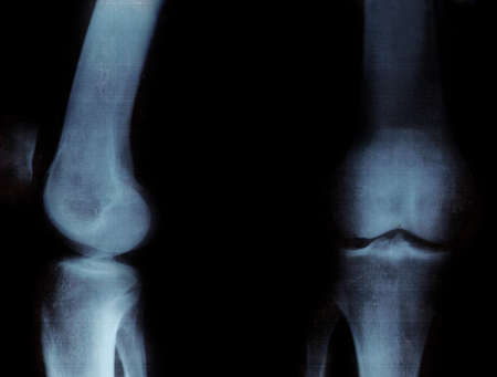 X-ray of the knee-joints. Over black background  photo