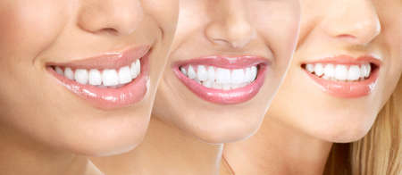 dental smile: Beautiful young woman teeth.  Stock Photo