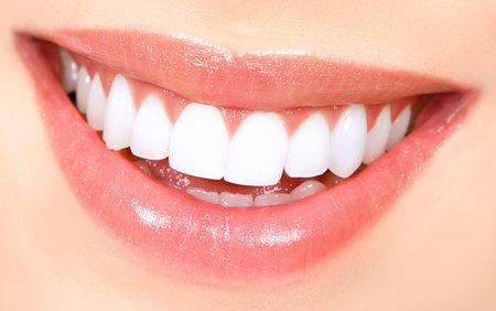 口: 美しい若い女性の歯。クローズ アップ